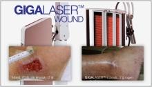 GIGAlaser_Wound_w650_p3