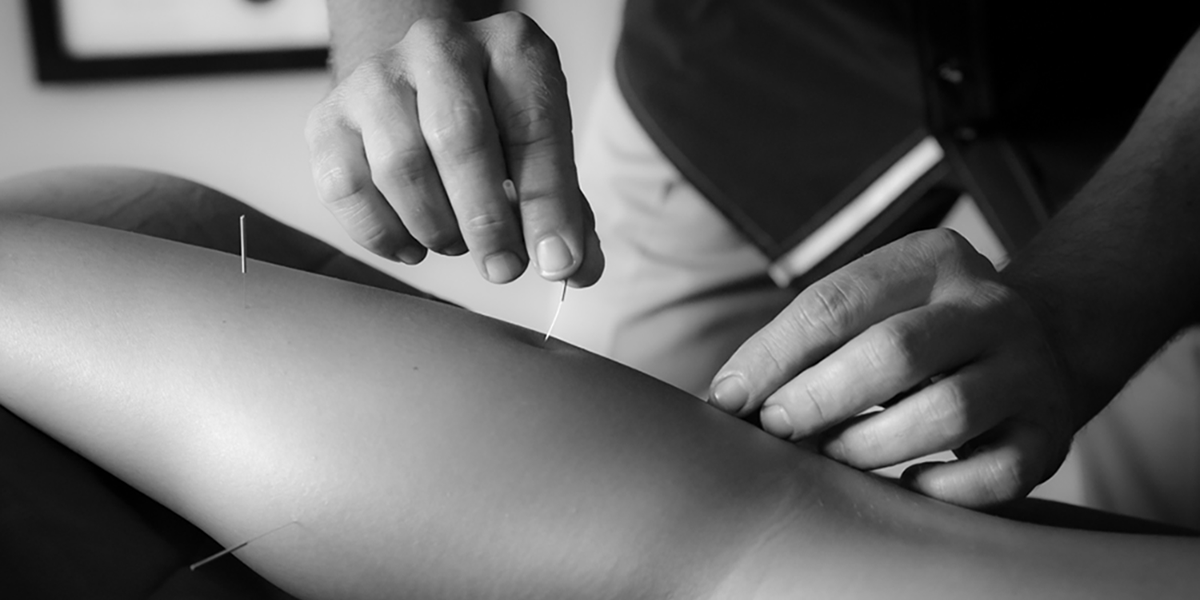 slider-image_acupuncture